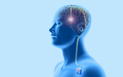 Reportagem do jornal A Tarde com o Dr. Carlos Romeu: Cirurgia é opção para doença de Parkinson